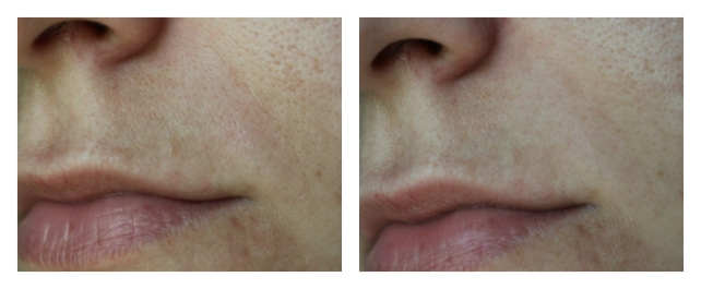Before & After the first application of CLOSE UP Instant Wrinkle Reducer & Treatment by Christie Brinkley